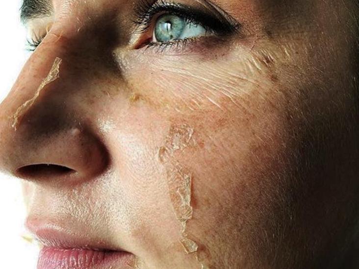 przebarwienia skuteczne pdmładzanie bez zmarszczek skóra z rozszerzonymi porami