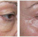 Zwiotczałe i opadające powieki górne, zmarszczki i kurze łapki, przebarwienia