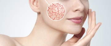 zamykania rozszerzonych naczyń krwionośnych